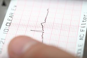 Tremblement de terre sur un sismographe